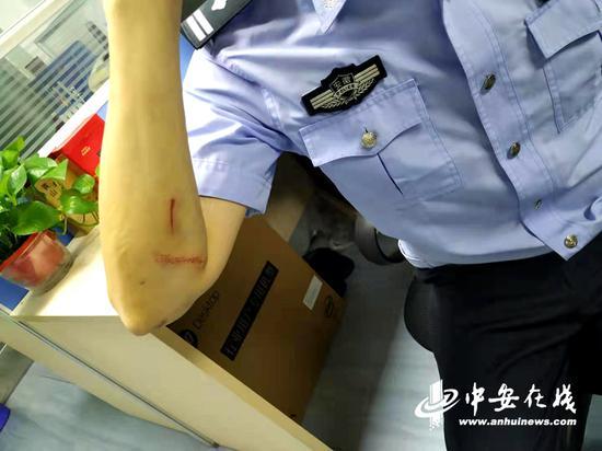 民警在抓捕过程中受伤