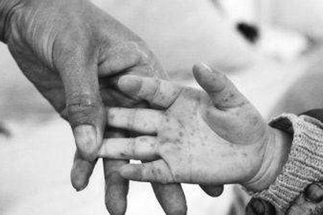 省卫计委专家提醒:家有幼儿要预防手足口病