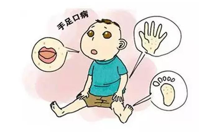 安徽省卫健委发布声明 手足口病进入高发期