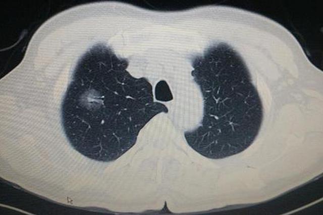 体检发现右肺有阴影 不是肺癌是异物