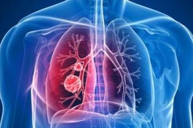 国家卫健委:新型冠状病毒肺炎采取甲类传染病预防措施