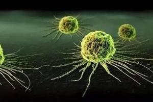 命理解读:容易患癌症的八字
