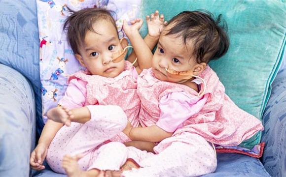 不丹连体女婴在澳大利亚医院分离成功