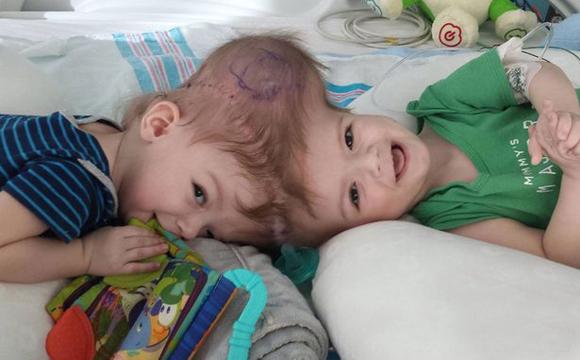 一对颅部连体婴儿奇迹幸存 成功度过分离手术