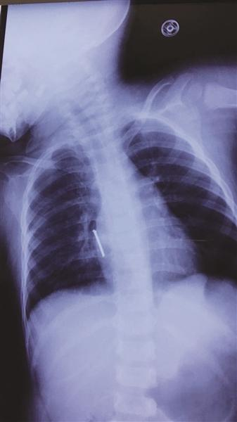 胸片显示,气钉扎进孩子胸腔,差一点就要了孩子的命。