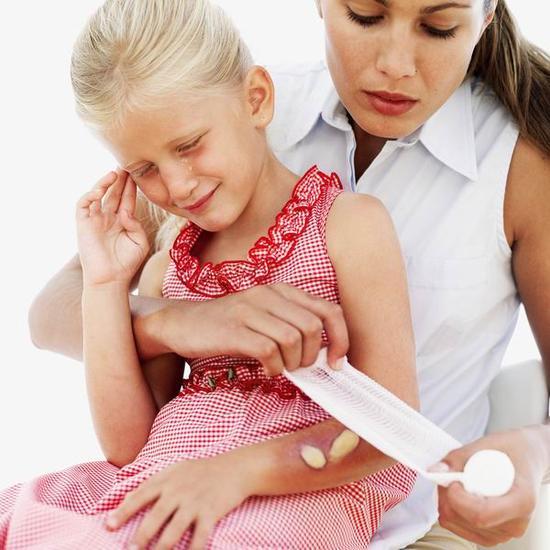 宝宝烧烫伤怎么办 专家:抹牙膏、涂酱