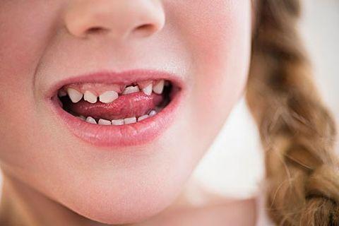 儿童牙齿畸形矫治 9开花店赚钱吗