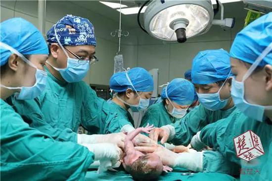 """10时40分,宝宝手术完成。此时,距他出生仅91分钟。""""肠子越快归位,孩子的存活率才能大大提高。""""张文说,30多名医护人员争分夺秒,为孩子抢到了宝贵的时间。"""