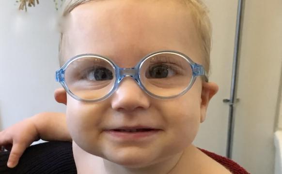 7个月大白内障宝宝术后首次看清世界