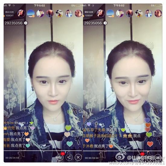 赵本山19岁女儿锥子脸