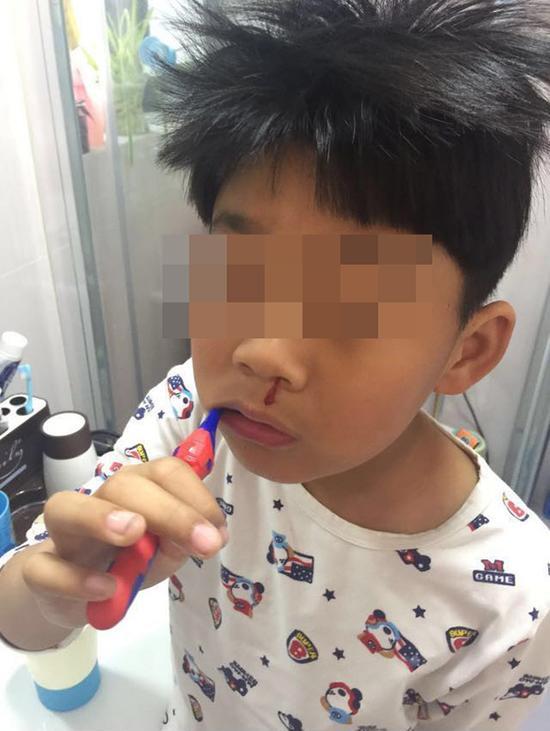 自称城南实验小学学生家长上传的照片——孩子洗漱时无故留鼻血。