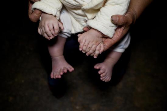 """3个月大男婴患""""多指症"""""""
