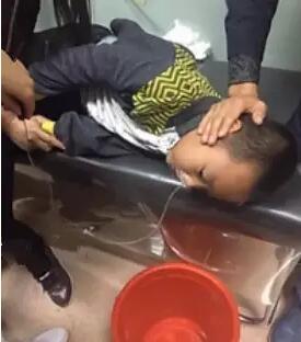 在刘鑫泽的呕吐物中,有明显的一大段铅笔芯颗粒,家人赶紧把他送到大庆油田总医院。