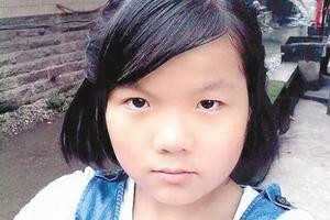 14岁少女为救父亲返回火场 全身烧伤面积达79%