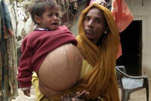 印度幼女腹中长18斤巨型肿瘤 比其体重还重