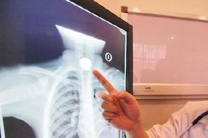 3岁女童误吞游戏币卡食道20小时 医生胃镜取出