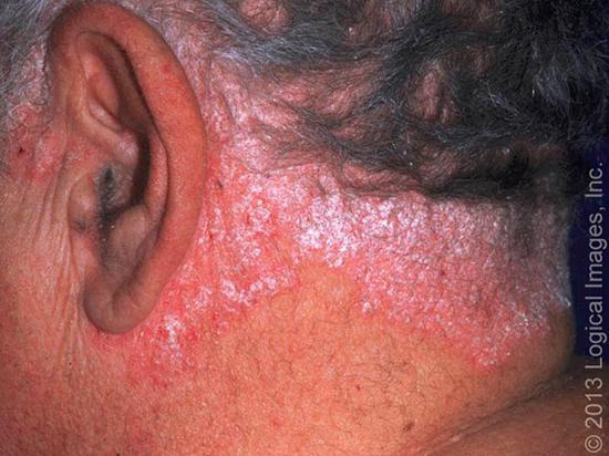 上图是日光浴暴晒后的孩子脖子上的白斑