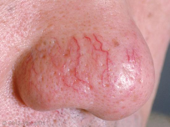 上图是长期使用激素后导致的毛细血管扩张,图片来自www.visualdx.com.