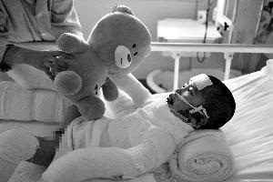 """经过12小时抢救,虽然辰辰已保住命,但医生却说,现在属于""""危重中的平稳期"""",创面一旦激发感染,那就很危险。"""