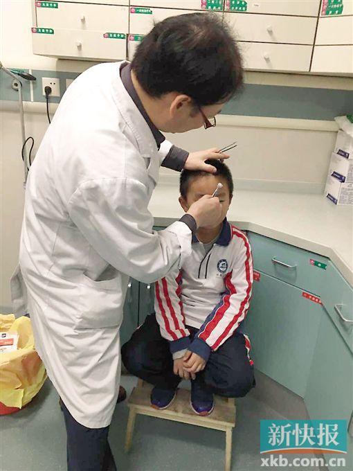 经医生检查,所幸伤口并不影响眼睛和视力。 受访者供图