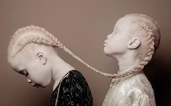 颠覆传统!巴西白化病姐妹成为时尚小超模