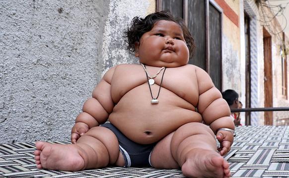 婴儿体重34斤成米其林小胖人