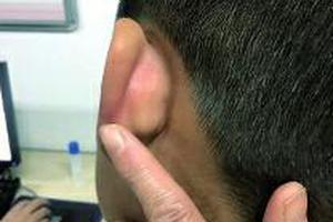 9岁娃被老师拍打揪耳致伤 家长质问遭不理不睬