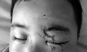 孩子左眼球破裂