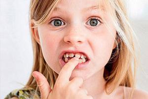牙齿排列不齐 11-13岁是矫治黄金期