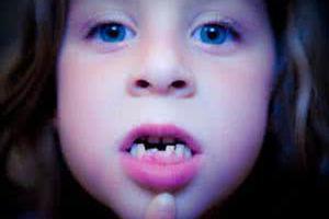 """乳牙""""地包天""""及早矫治不误事"""