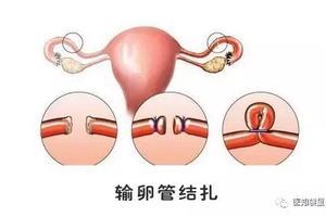 输卵管堵塞,怀孕到底有多难?