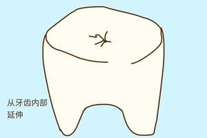 小孩子出现龋齿,以为换牙就会好那真是大错特错