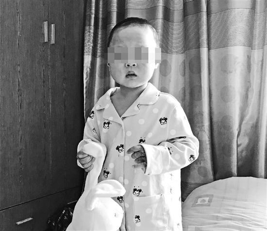 9月23日,在杭州方家花苑火灾中受伤的恩恩出院了。