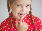 恒牙长歪只能矫正吗?