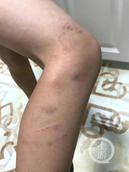 ▲孩子膝盖上方皮肤有多处淤青,还有两处划痕。受访者供图