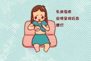 哺乳期得了乳房湿疹,还能继续喂奶吗?