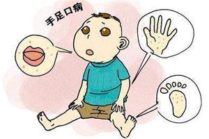 香港一国际幼儿园23名幼童及职员染手足口病