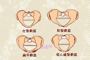 这2种骨盆形状的孕妈,更容易顺产,是你吗?