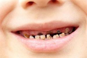 宝宝出现蛀牙别都怪糖 教你几招为宝宝护理牙齿