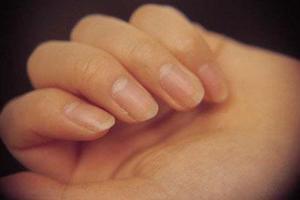 孕妈手指出现这3种症状,说明已经严重贫血了!