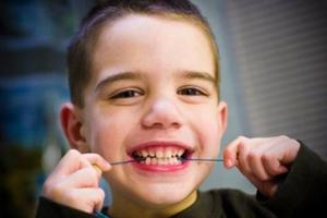 这些习惯会导致孩子牙不齐