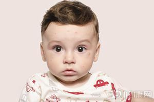 夏季婴儿长痱子该怎么办?