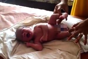 印度畸形男婴有四条腿和两个生殖器