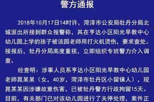 女幼师用打火机烫幼童 通报:涉故意伤害拘留15天
