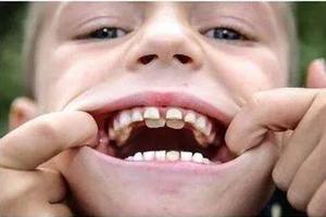 """口腔科10個寶寶2個是""""雙排牙""""  這個習慣導致的"""