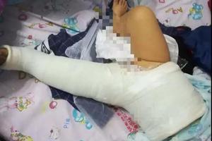 大狗撞摔致女婴十级伤残 狗主人拒赔10万被拘15日