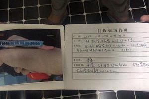 沈阳回应幼儿园教师虐童事件:3名涉事教师被刑拘