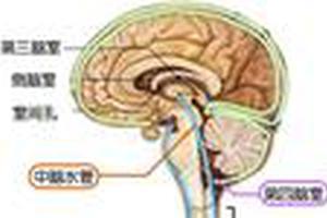 胎儿侧脑室增宽怎么办?