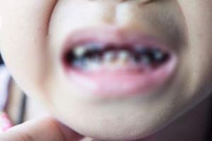 每天喝这种东西,2岁宝宝一嘴牙齿全烂了,家长一定注意