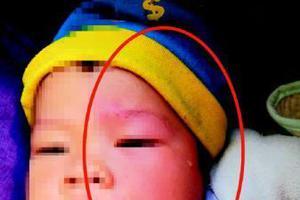 一岁男娃被从天而降的瓷砖砸伤 瓷砖用胶水粘遭质疑